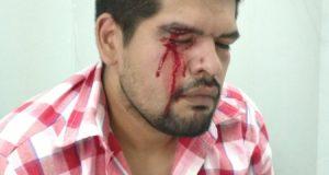 Despedidos del Posadas fueron a pedir explicaciones a ATE Morón y Darío Silva les contestó a las piñas